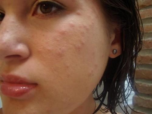 acne skin face
