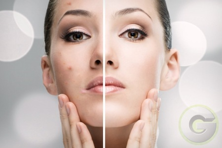 Myths And Facts About Acne - Women Hairstyles