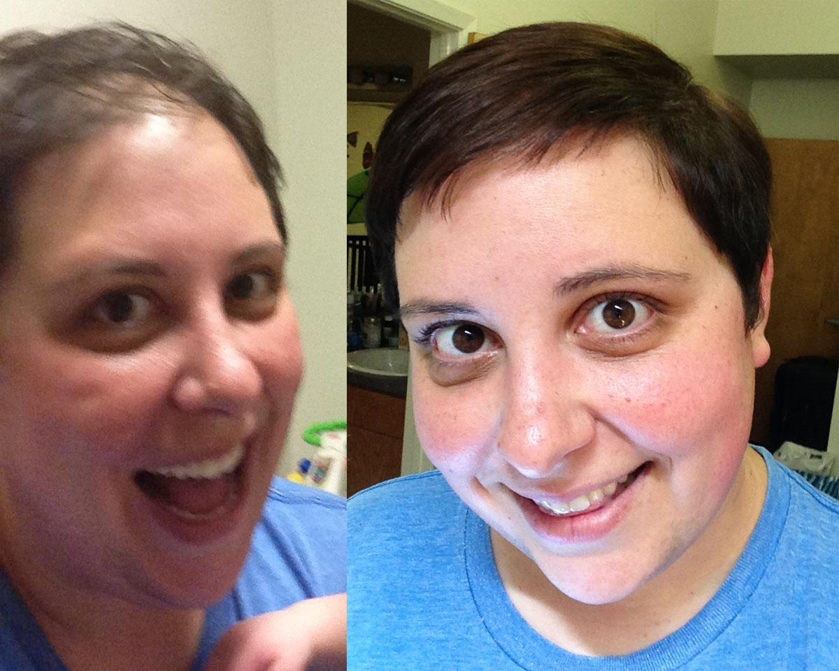 hair loss insulin